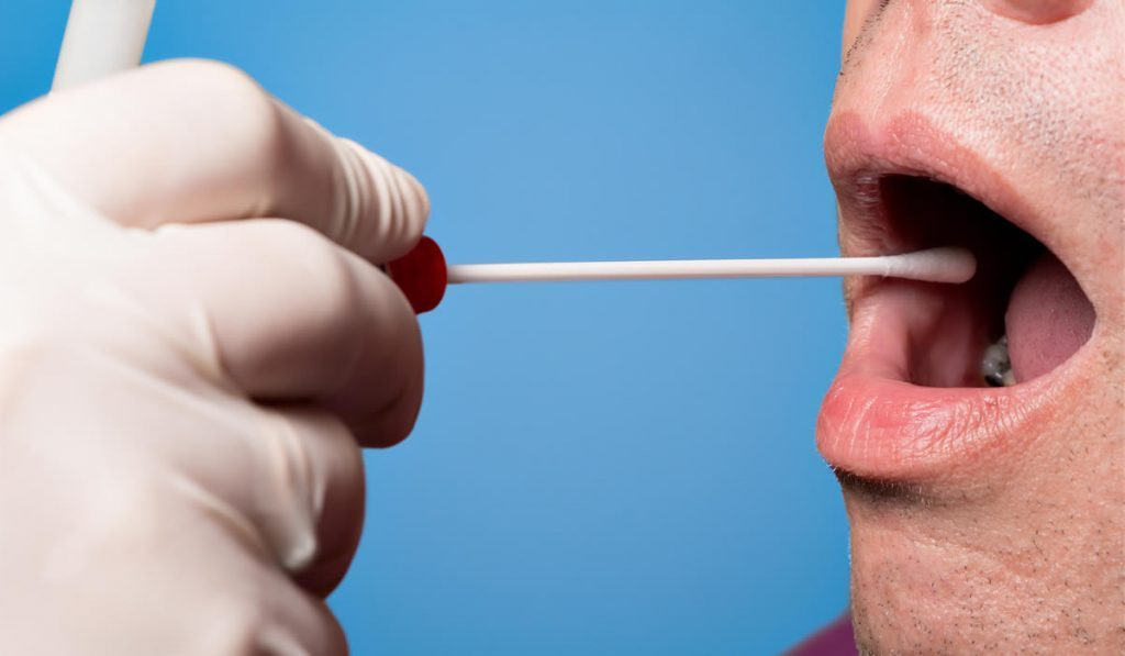 Passing A Mouth Swab Test 19
